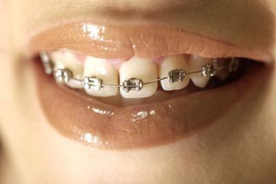 戴金属牙套的女孩